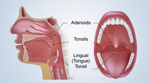 Benefits of Removing Tonsils